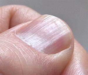 Lupenka ve vlasech vitamin