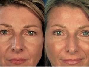 Сделать маску для лица от морщин в домашних условиях