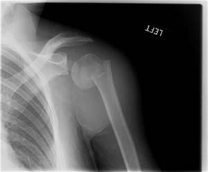Do you have Shouldern Pain?   Seperated Shoulder   Broken ...