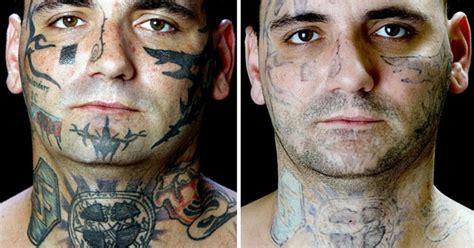 fda tattoo removal  simple process cbs news