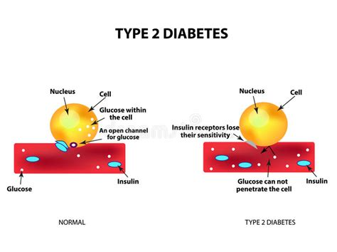 absorption  glucose   cell type  diabetes