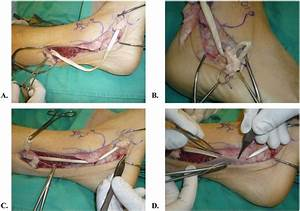 Chronic rupures of the achilles tendon on emaze
