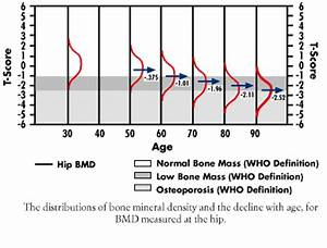 Bone Density Z Score Chart Osteoed Osteoporosis Education