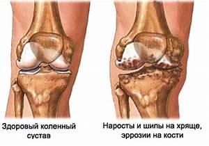 Упражнения от болей в коленном суставе