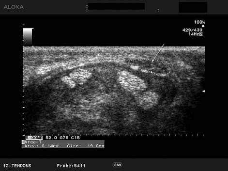 Transverse scan of the carpal tunel: swelling of the ...