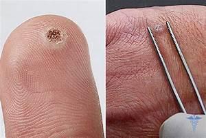 Лечение папилломы вируса шейки матки