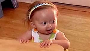 Progeria Symptoms Babies | www.imgkid.com - The Image Kid ...