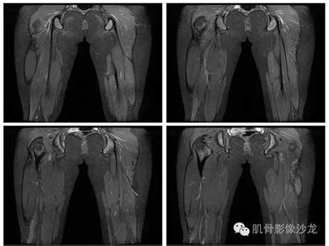 【病例】股骨尤文氏肉瘤1例X线及MR影像表现 – 影像PPT