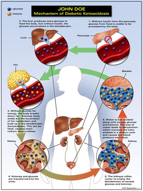 Diabetic Ketoacidosis Causes, Symptoms, Treatment. Bankruptcy Attorney Indianapolis In. Town And Country Wewoka Ok Cuba Study Abroad. Furniture Shipping Cost Calculator. Electronic Data Capture Companies. Brinks Home Security Systems. Are Red Cars More Expensive To Insure. Cost Of Laser Eye Surgery Plumber Palmdale Ca. How Long Does Alcohol Detox Take