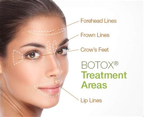 Dallas Botox, Xeomin For Wrinkles, Hyperhidrosis & Jaw. Pest Control Arlington Texas. Media Studies Graduate Programs. Venous Thromboembolism Prevention. University Of California San Francisco Nursing. Affordable Divorce Lawyers In Chicago. Best Website Monitoring Service. Things To Do In Downtown Boise. Office Space For Rent Tampa Small Boxy Cars