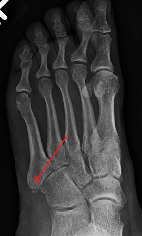 fracture cadre obturateur gauche fracture du cadre obturateur droit 28 images fracture du scapho 239 de sympt 244 mes