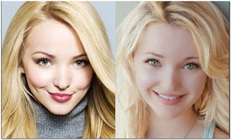 Take a Peek at Dove Cameron's Before Plastic Surgery ...