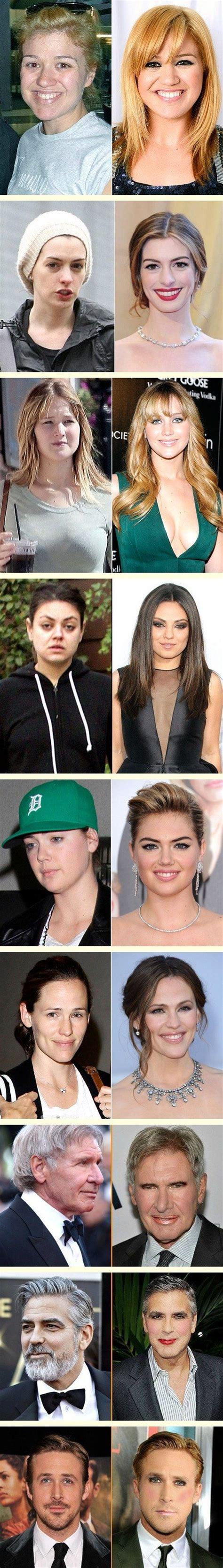 25 Wonderful celebrities before and after nose job in ...