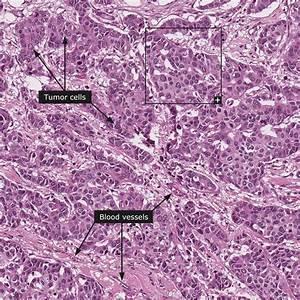 Invasief ductaal carcinoom graad 3