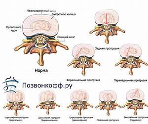 Алмаг-01 при лечении остеохондроза позвоночника