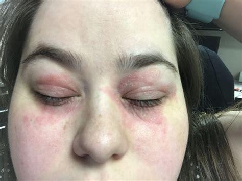 Burning, red skin around my eyes. : AskDocs