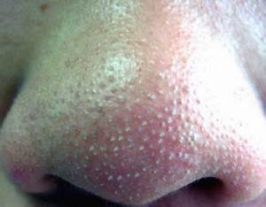 Whiteheads on Nose, Causes, Clogged Pore, Removing ...