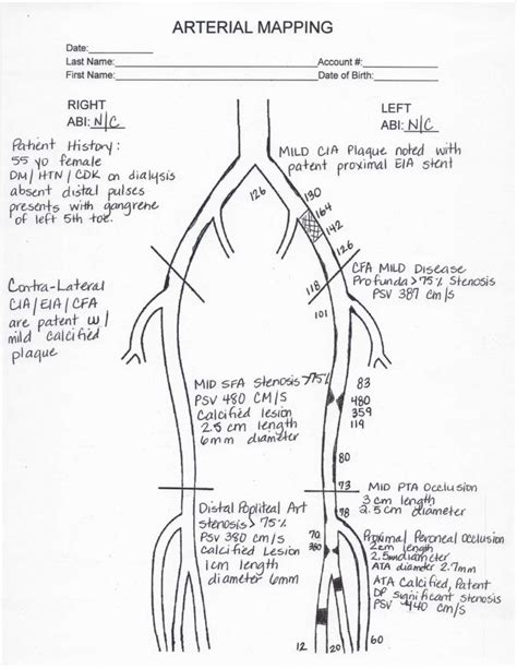 venous insufficiency ultrasound worksheet the best and