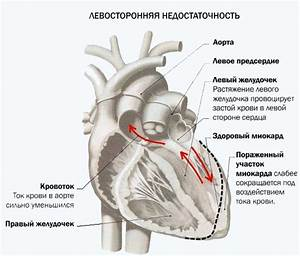 Москва центры по лечению гипертонии