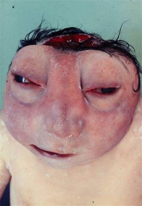 Cytotec 4 Semanas Interrupção Da Gestação De Fetos Anencéfalos