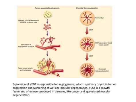 angiogenesis pathology laboratory medicine boston