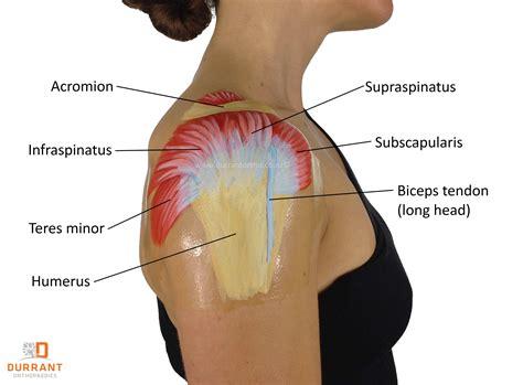 Great Alternatives To Rotator Cuff Surgery!