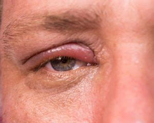 Herpes In The Eye Images Shingles In The Eye Herpes Zoster Symptoms