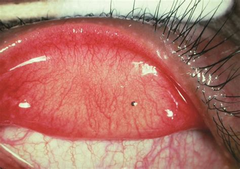 conjunctival foreign body american academy  ophthalmology