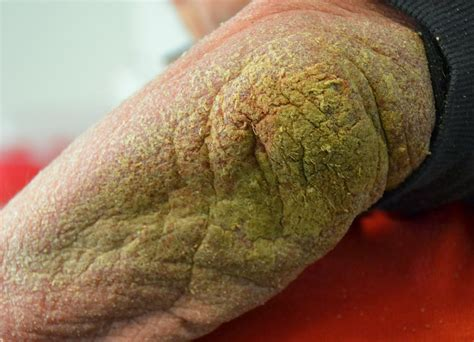 Scabies On Elbows Pictures To Pin On Pinterest Pinsdaddy