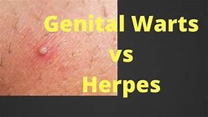 Genital Warts Vs Herpes