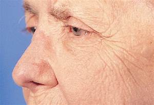 The Forehead Flap For Nasal Reconstruction