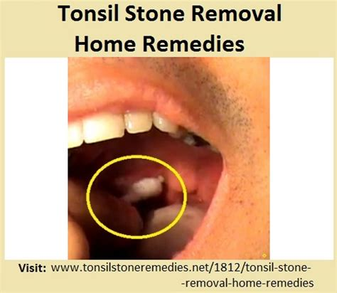 removing tonsil stones at home tonsil removal home remedies 34703