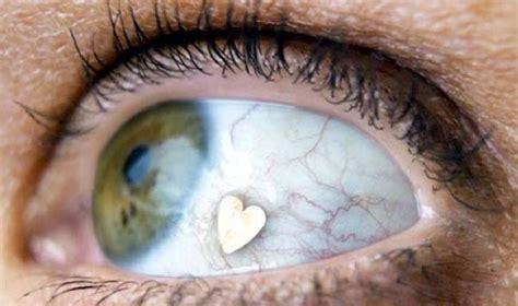 bizarre sparkly eye jewellery implants  raging