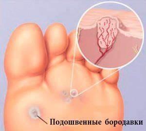 Лечение папиллом по неумывакину
