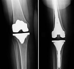 Revision Total Knee Replacement - Orthoinfo