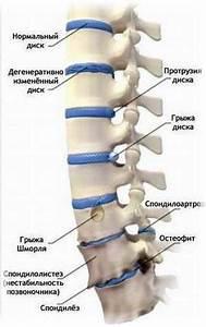 Артроз лечение хромоты ноги