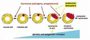 Schematic Representation Of Multistep Carcinogenesis In