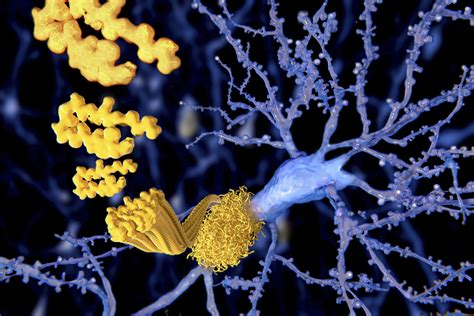 Alzheimer disease is becoming more common as the general population gets older and lives longer. Alzheimer Plaques: fast Visualization in Thick Sections ...