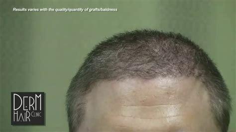 body hair transplant  severe baldness cured youtube