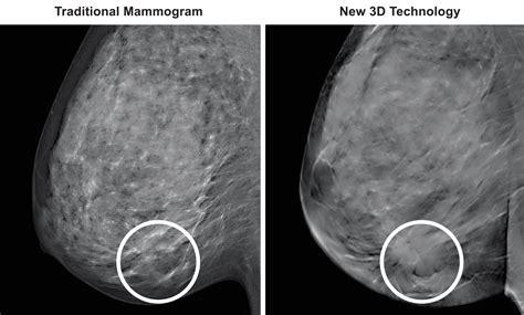 3D Mammography (TM) - Medical Associates of Northwest Arkansas