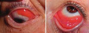 Two Examples Of Classical Presentation Of Conjunctival