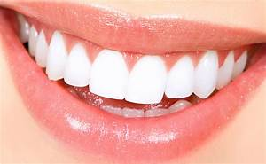 Full Mouth Dental Implants Cost In India