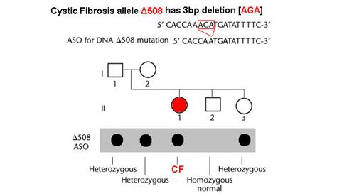 Aso Test For Cystic Fibrosis