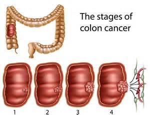 Colon Cancer Treatment: Colorectal Cancer Stages and Treatment Options Colorectal Cancer