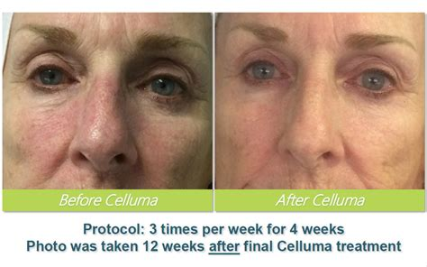 Celluma LED Light Therapy ⋆ Tampa Spa Anna Esthetics (813