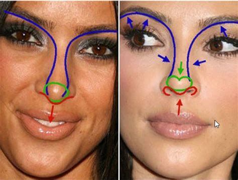 Pin by Lydia Cole on CELEBRITY TRANSFORMATIONS | Plastic ...