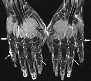 Best 25+ Rheumatoid arthritis pictures ideas on Pinterest ...