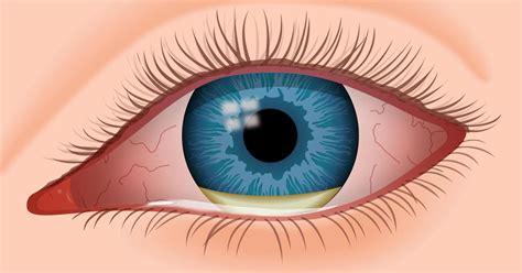 eye infection lockport family