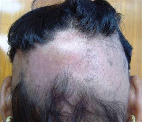 haare dunkelblond färben haare f 195 164 rben bei alopecia areata