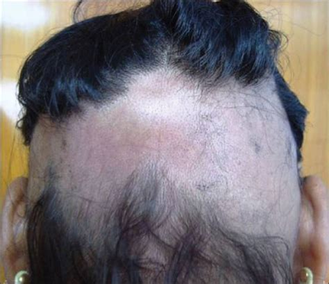 alopecia areata  update seetharam ka indian